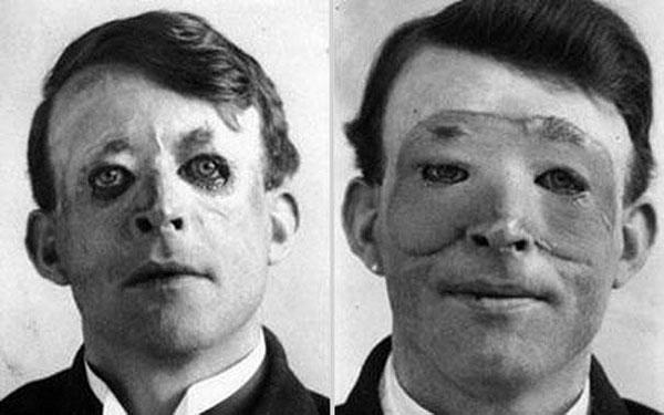 Walter Yeo, uno delle prime persone a sottoporsi ad un trapianto di pelle e chirurgia plastica avanzata nel 1917